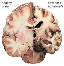 alzheimersnormalbrains